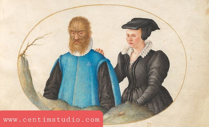 """اعتقد والديه أن طفلهما مصاب بمرض شيطاني (لم يكن أحد يعرف عن فرط الشعر في ذلك الوقت) وعندما بلغ بيتروس الصغير 10 أعوام ، باعوه لقراصنة فرنسيين. أطلقوا عليه لقب """"رجل الغابة"""" وقدموه لهنري الثاني ، ملك فرنسا.  لاحظ Henri II أن الصبي غير العادي كان ذكيًا جدًا وأنه كان يتعلم اللغة الفرنسية بسرعة كبيرة. حرص الملك على أن يتلقى بيتروس تعليمًا جيدًا. بعد وفاة هنري الثاني ، تولت زوجته كاثرين دي ميديشي رعاية بيتروس. وفقًا لبعض المصادر ، بدأت حفل زفاف بيتروس. كانت زوجته سيدة ملكة جميلة تدعى كاثرين."""